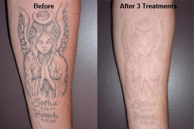 after 3 treatments
